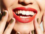 Medicul raspunde: Ne strica albirea smaltul dintilor?