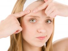 Piele cu tendinta acneica? Descopera inovatia Keracnyl