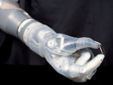"Prima proteza de brat care ""simte"" ca o mana a devenit realitate!"