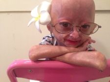 Rare diseases  :  , Mani girl 6 years with the that the progeria conquered the Internet