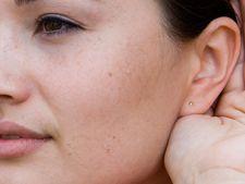 Cum scap de urechile clapauge?