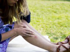 Sezonul insectelor purtatoare de boli riscante pentru om. Cum ne protejam de capuse si tantari