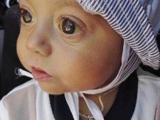 La doar 7 luni, are nevoie de transplant de ficat!