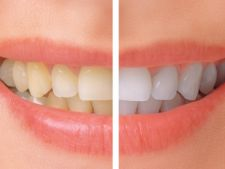 Expertul Acasa.ro, dr Cristian Irimia, medic stomatolog: Intrebari frecvente despre albirea dintilor