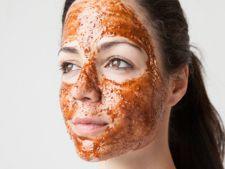 Tratamentul-minune care te scapa de acnee si de punctele negre! Il poti prepara acasa