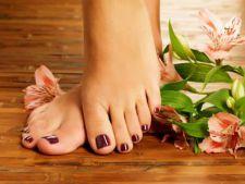 Despre cauzele care determina aparitia micozei piciorului si modul in care putem grabi vindecarea