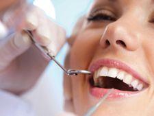 Mituri despre implanturi dentare
