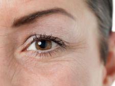Sterge natural semnele imbatranirii din jurul ochilor