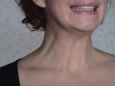 Gimnastica faciala impotriva ridurilor. Ai incercat pana acum? VIDEO