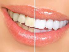 5 mituri despre albirea dintilor: ce trebuie sa stii inainte de a apela la aceasta procedura cosmetica