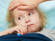 Avertismentul medicilor: epidemia de rujeola se poate extinde