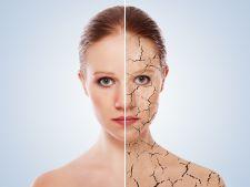 Ce poti face cand ai pielea foarte uscata, afectata de psoriazis sau neurodermatita?