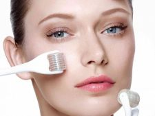 Expertul Acasa.ro, dr Dana Maria Bratu: Microneedling medical – tratament revolutionar pentru cicatrice post-acneice