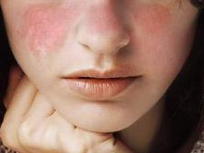 Lupusul, mai frecvent in cazul femeilor. Cum se manifesta boala