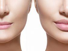 Expertul Acasa.ro, dr Dana Maria Bratu: Marirea buzelor- necesitate reala sau trend?