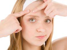 Cum tratezi acneea. 7 remedii homemade