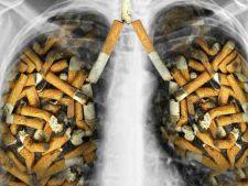 Bautura miraculoasa care curata plamanii fumatorilor! Iata cum o prepari