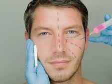 Expertul Acasa.ro, dr Dana Maria Bratu: Ce tipuri de tratamente estetice aleg barbatii
