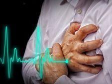 Atentie! Semnele care anunta un posibil infarct