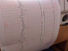 Ecografia Doppler, o metoda eficienta de a depista afectiunile vasculare