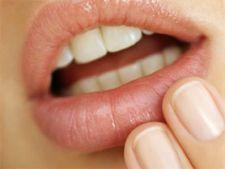 Remedii care te scapa de herpes intr-o singura zi