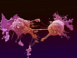 Cancerul, depistat prin analiza de sange. Unde te poti testa!