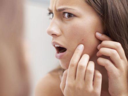 Expertul Acasa.ro, dr Manuela Ravescu – medic dermatolog: Acneea, o afectiune care nu trebuie ignorata