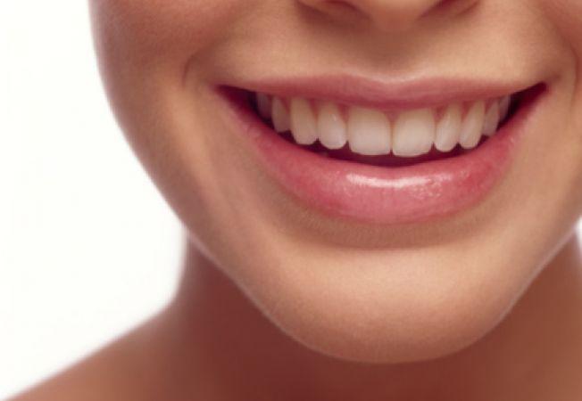Implant dentar pentru dinti frumosi
