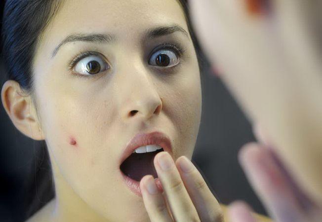 Invata sa previi acneea cu trucuri la indemana