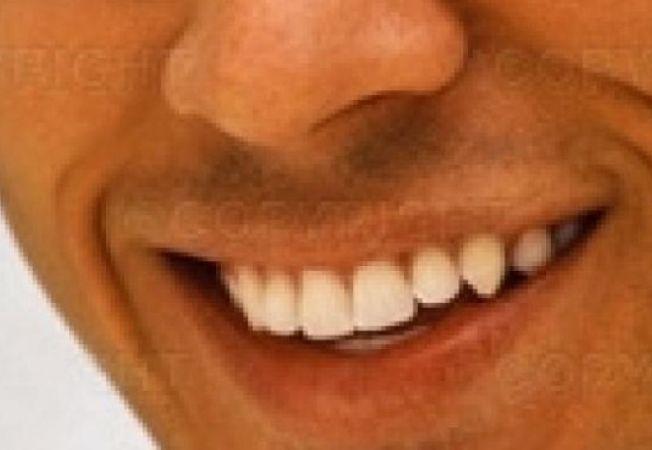 zambet dinti barbat