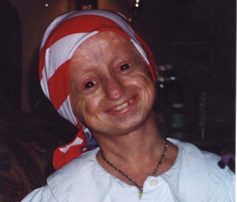 128822-ioana-jitariu-progeria.jpg