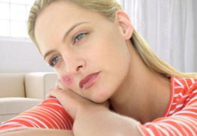 pierderea în greutate pacienții lupus