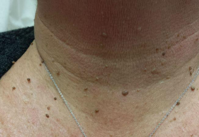 Papiloame – cauze, simptome, tratament, prevenire