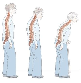 Spinarea herniilor spinale cu rumalona