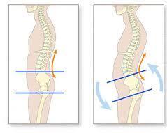 Dureri de spate ieftine ?i dureri de spate